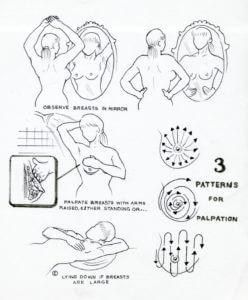 Breast Examination Technique - Image Courtesy of Sydney Colon Health Centre