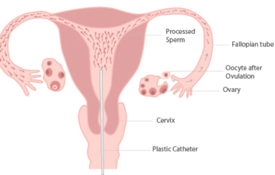 Frequently Asked Questions on Intrauterine Insemination