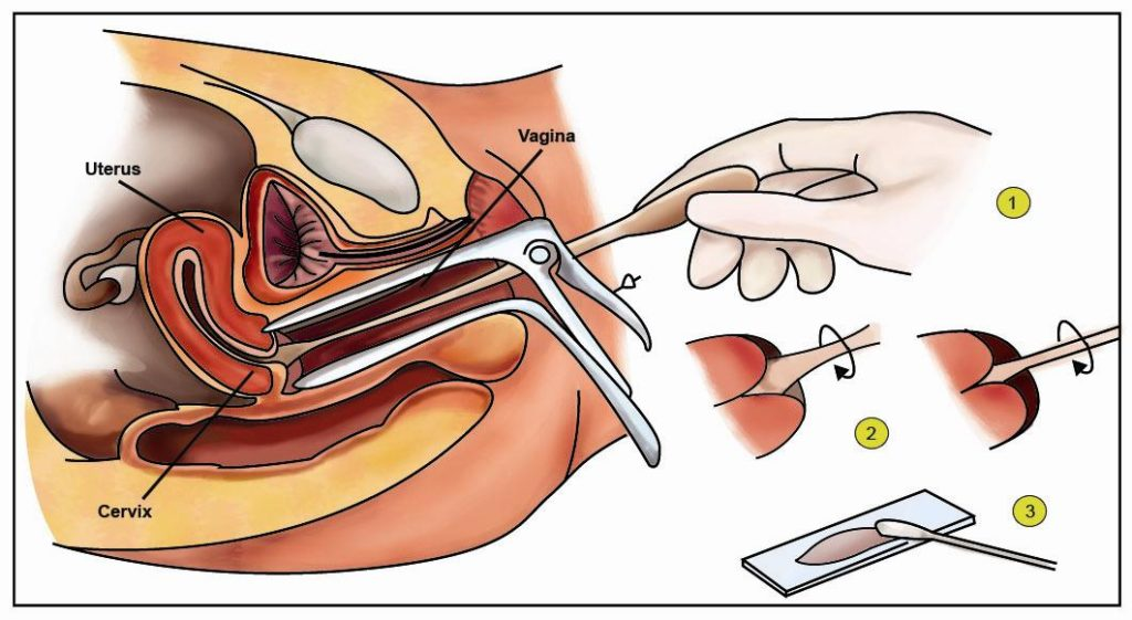How a pap smear is performed