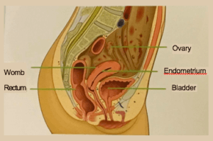 Where does Endometriosis grow?