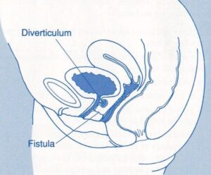 Urinary Tract Abnormalities Fistulas
