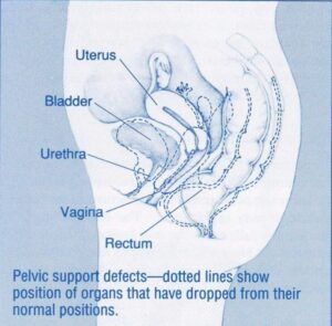 Pelvic Support Defects